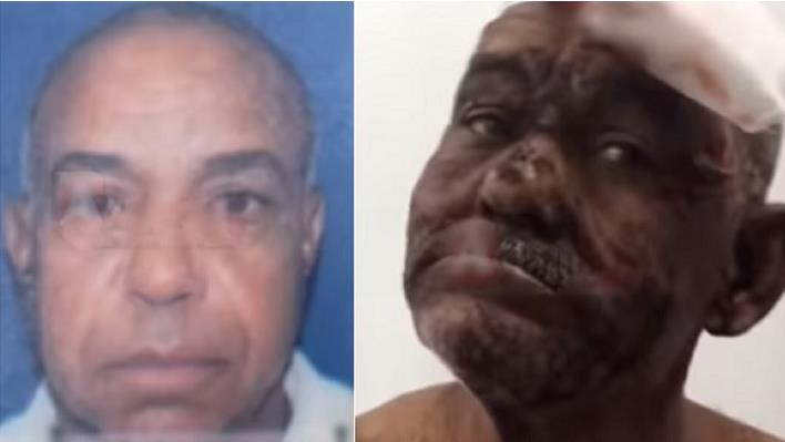 Photo of SFM: Hombre de 72 años mata otro de 56 en enfrentamiento a puñaladas