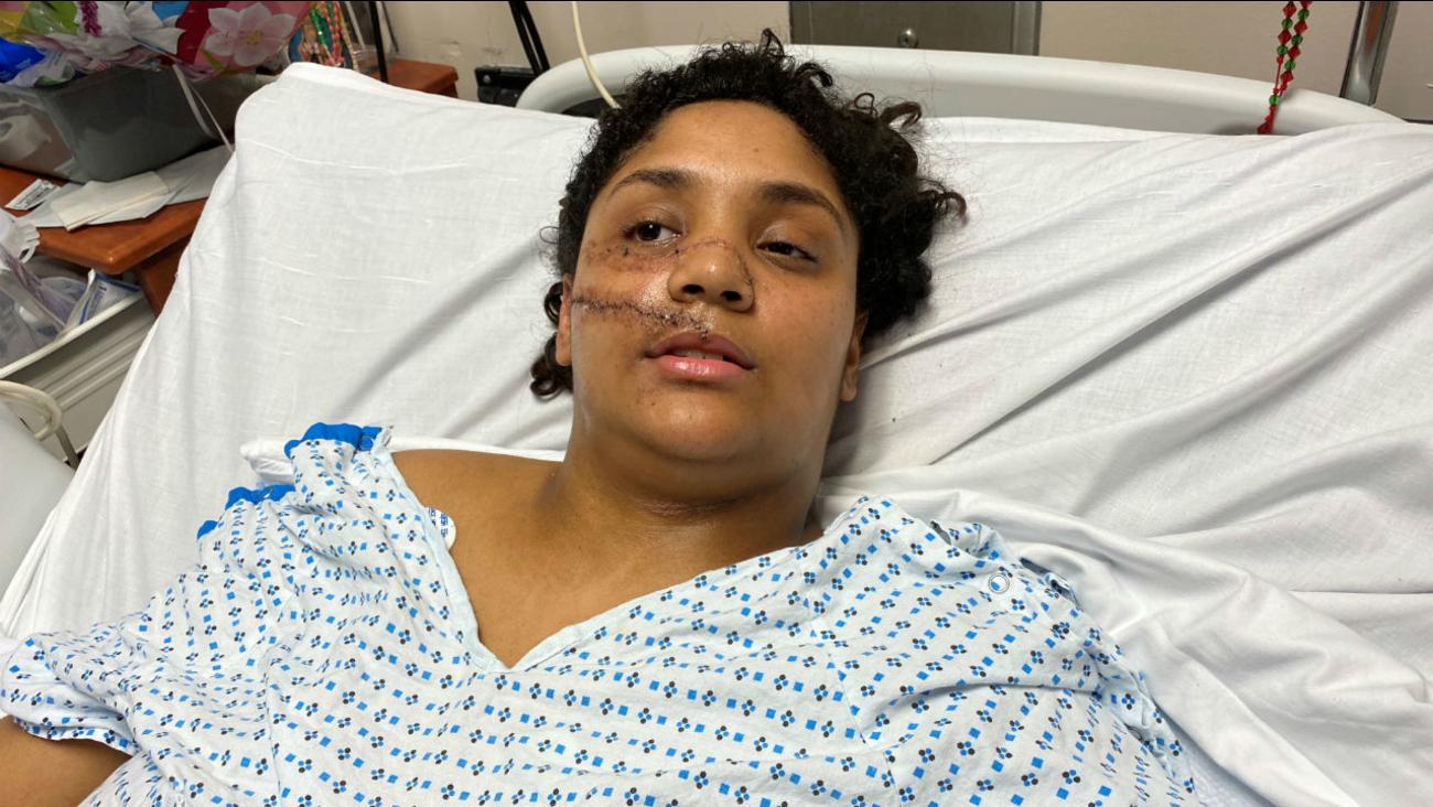 Photo of Dominicana atacada a machetazos constantemente revive horror de la agresión