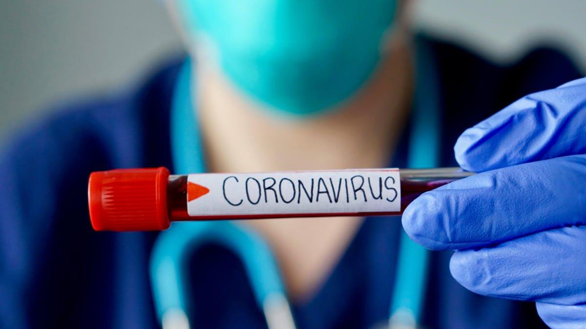 Photo of SILSARIL aprobó procedimiento para pruebas coronavirus inmediatas en RD