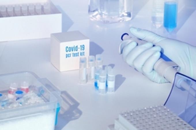Photo of Aumento de coronavirus en RD y dificultades para acceder a pruebas motiva donaciones