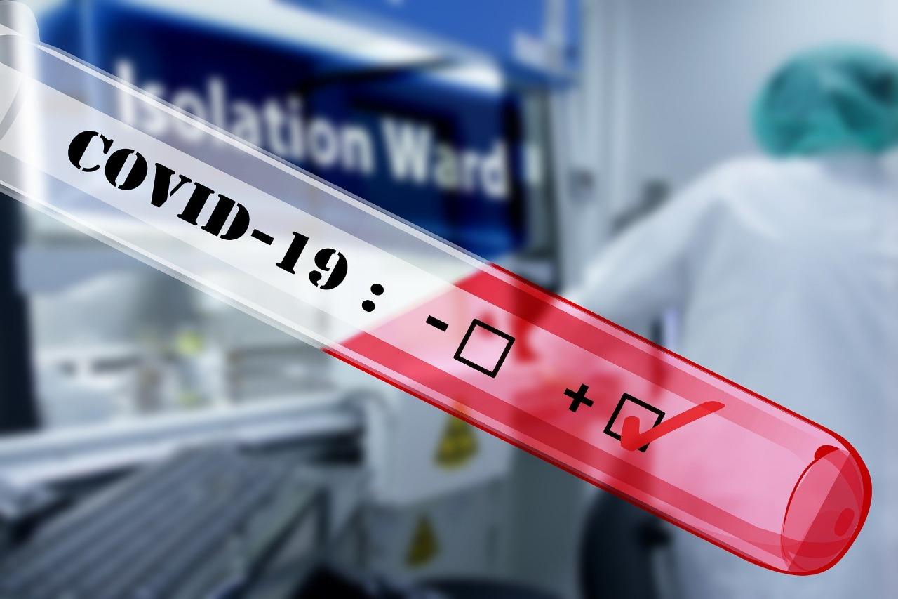 Photo of En el mundo hay 4.24 millones de casos de COVID-19