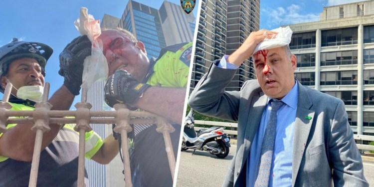Photo of Hieren en la cabeza jefe policía de NYC durante protesta